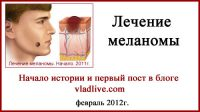 Лечение Меланомы. Часть1. Россия. Сентябрь 2011