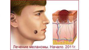 Лечение меланомы. Рассказ