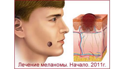 Лечение Меланомы. Часть1.Россия. Сентябрь 2011