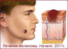 Отзыв о лечении меланомы