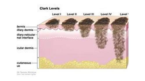 Биопсия сторожевых лимфоузлов. Меланома