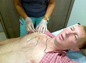 Лечение меланомы. Биопсия сторожевых лимфатических узлов. Видео.