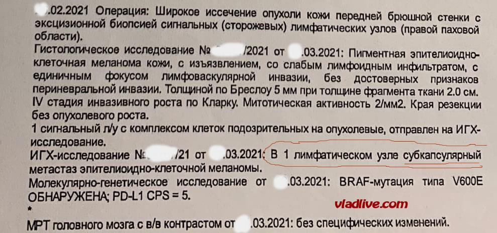 Биопсия сторожевых лимфоузлов в Санкт Петербурге