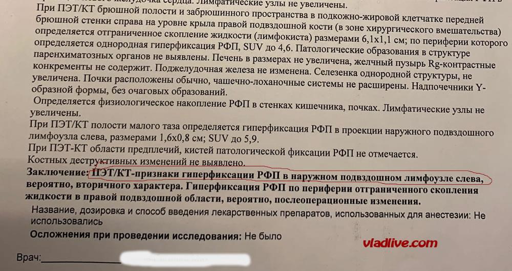 После БСЛУ в Санкт-Петербурге