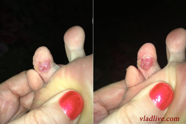 Беспигментная меланома на пальце ногиБеспигментная меланома на пальце ноги