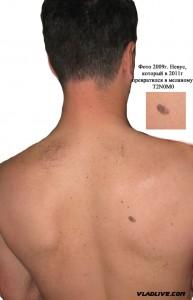 Меланома на спине. Фото