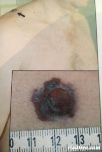 Меланома на плече