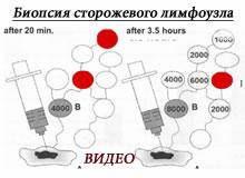 Лечение меланомы. Биопсия сторожевых лимфоузлов. Видео