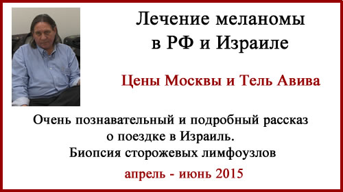 Лечение меланомы в России и Израиле. Биопсия сторожевых лимфоузлов. Отзыв.