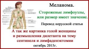 Меланома. Сторожевые лимфоузлы, или размер имеет значение.