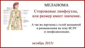 Меланома Сторожевые лимфоузлы, или размер имеет значение.