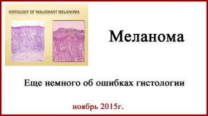 Меланома. Гистология. Пересмотр гистологического материала.