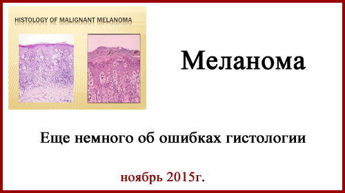 Меланома. Ошибки гистологии