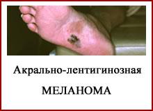 Акрально-лентигиозная меланома