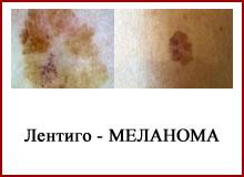 Лентиго-меланома