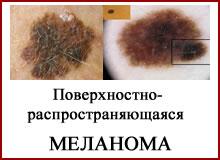 Поверхностно распространяющаяся меланома