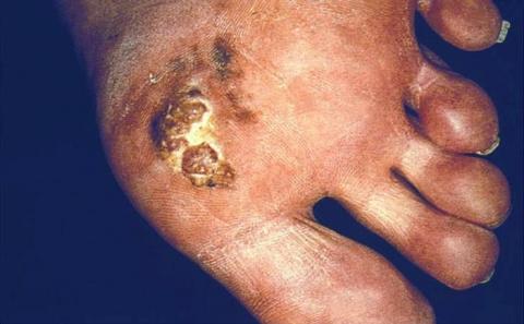 Акрально-лентигинозная меланома. Фото
