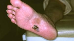 Акрально-лентигинозная меланома