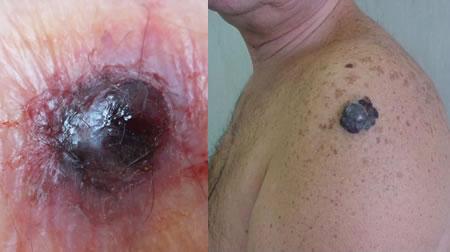 Узловая (нодулярная) меланома