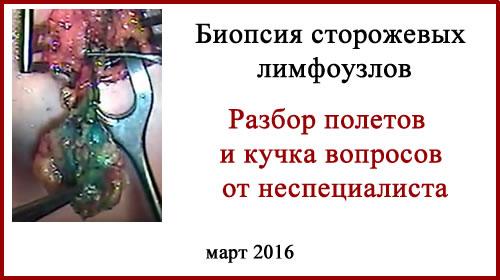 Биопсия сторожевых лимфоузлов. Вопросы и разбор полётов.