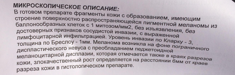 Гистология меланомы в РОНЦ им Блохина
