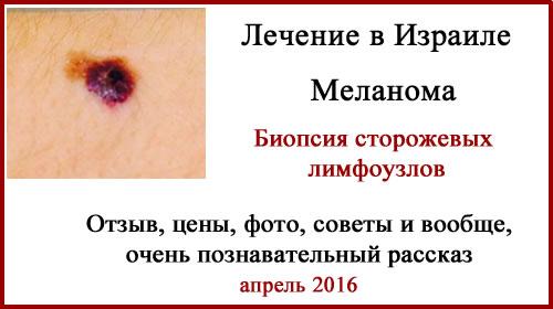 Лечение меланомы в Израиле. Биопсия сторожевых лимфоузлов. Отзыв.