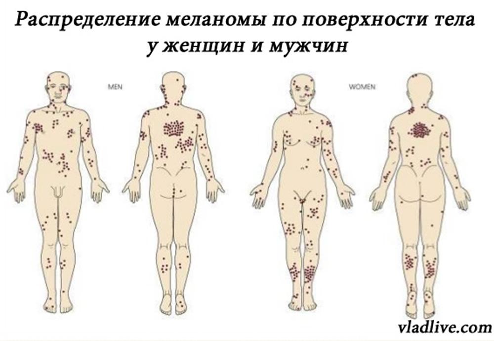 Распределение меланомы по поверхности тела у мужчин и женщин