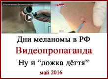 День меланомы в РФ