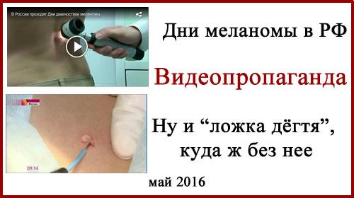 День меланомы 2016. Часть вторая. Видеопропаганда.