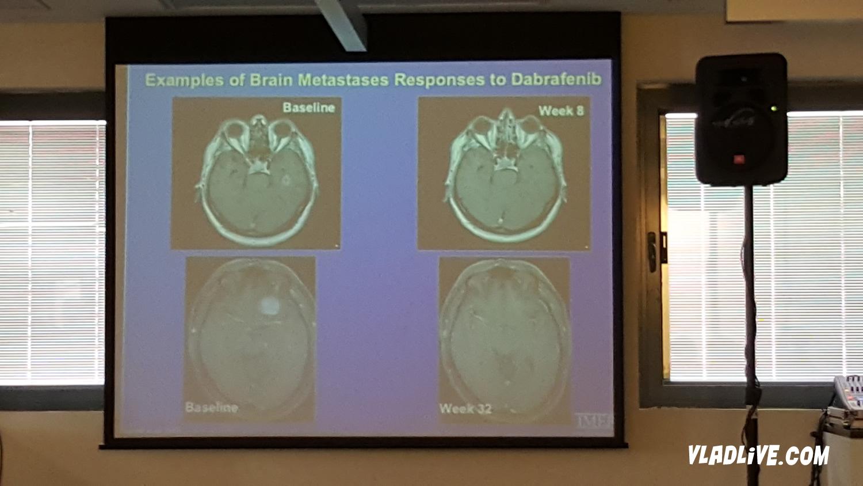 Действие Тафинлара (дабрафениба) на метастазы в головной мозг