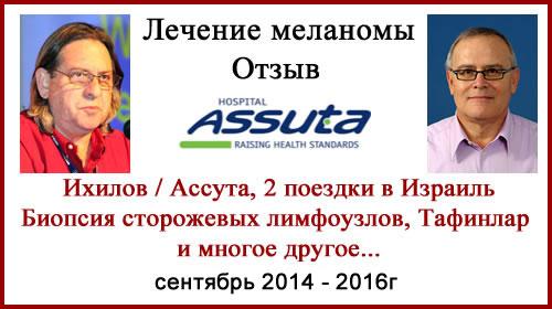 Лечение меланомы в РФ и Израиле. Отзыв. Фото. Обновлено 08.10.18