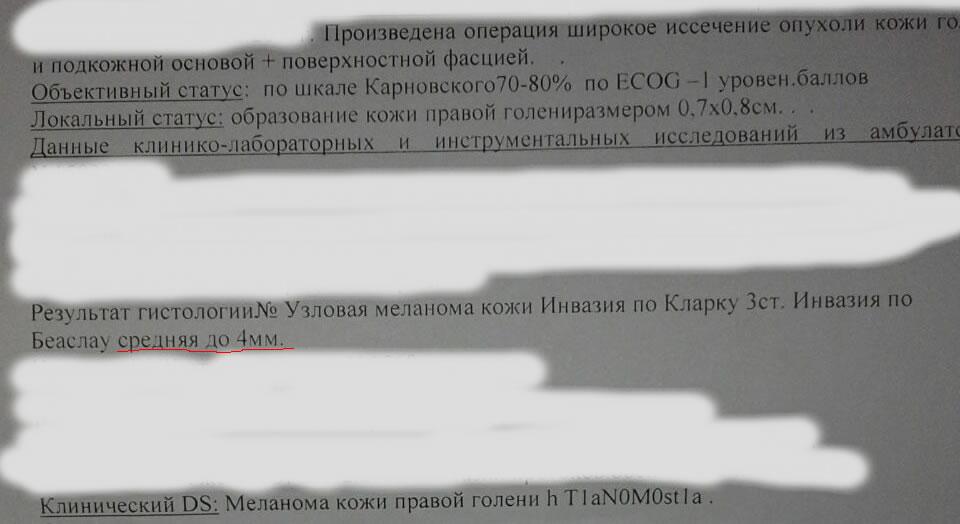 Гистология меланомы. Казахстан