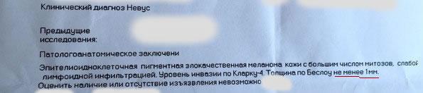 Гистология меланома Россия