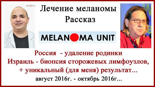 Лечение меланомы. Россия — Израиль. Биопсия сторожевых лимфоузлов. Рассказ