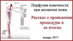 Меланома. Перфузия конечностей