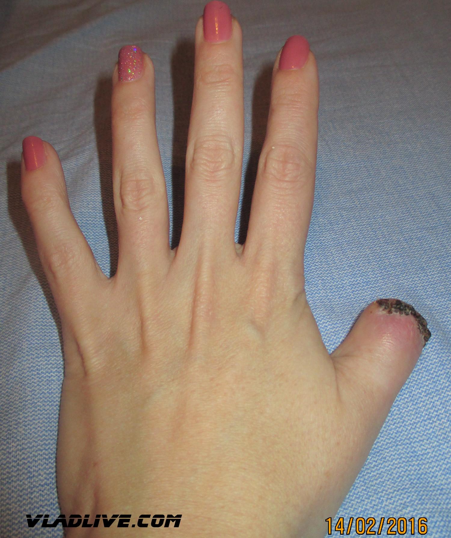 Меланома ногтей ног фото