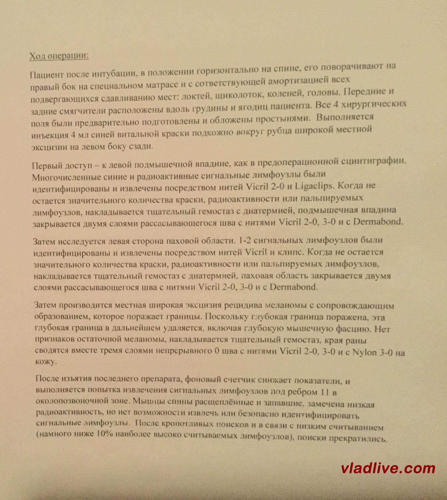 Лечение меланомы. Биопсия сторожевых лимфоузлов. Операция.