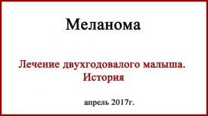 Меланома у детей. История