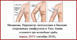 Меланома. Лечение в Израиле