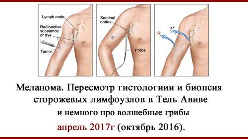 Лечение в Израиле. Меланома.  Обновлено 27.01.2020