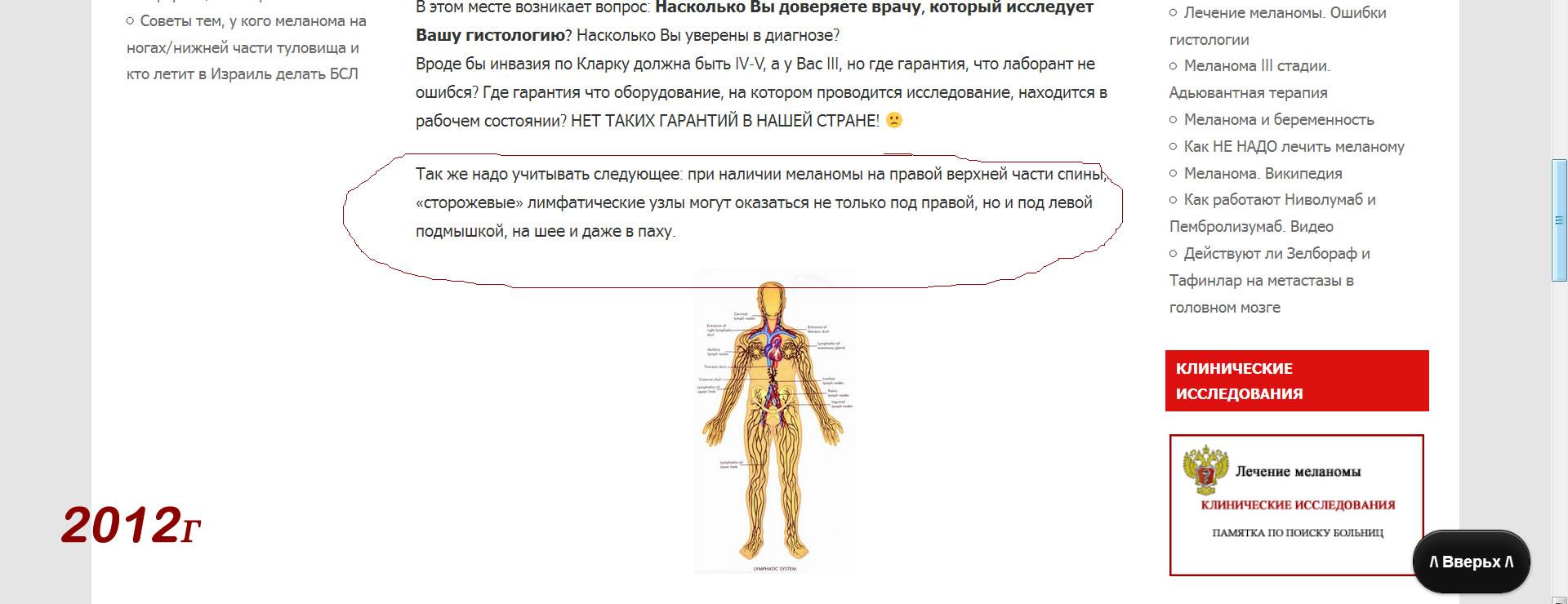 Лечение меланомы. Метастазирование