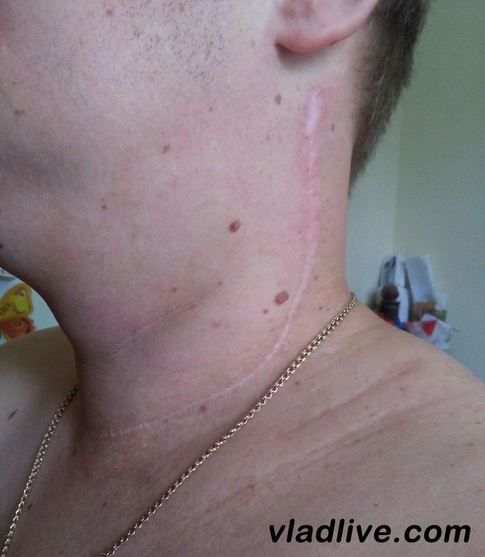 Меланома. Швы после операции