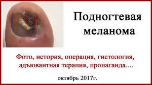 Подногтевая меланома (фото). История. Операция, гистология, адъювантная терапия