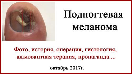 Подногтевая меланома