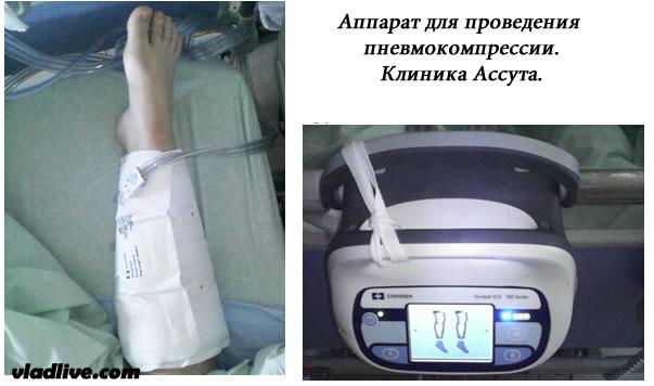Ассута. Аппарат дла проведения пневмокомпрессии