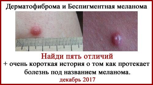 Меланома и дерматофиброма