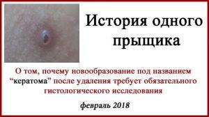 Кератома, или плоскоклеточный рак кожи.
