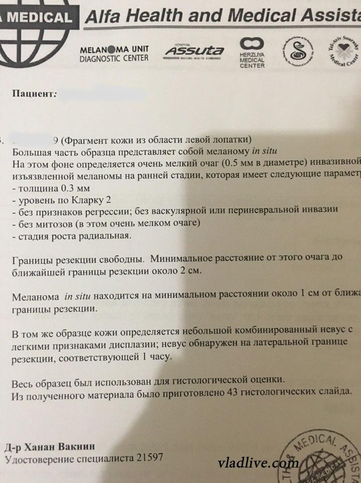 Меланома. Гистология