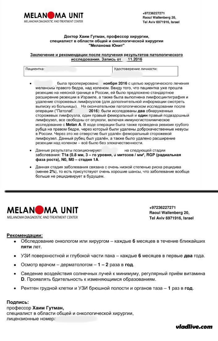 Меланома операция