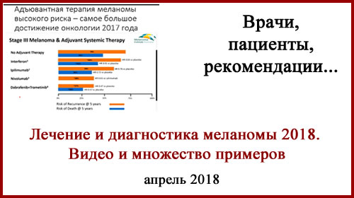 Лечение меланомы 2018